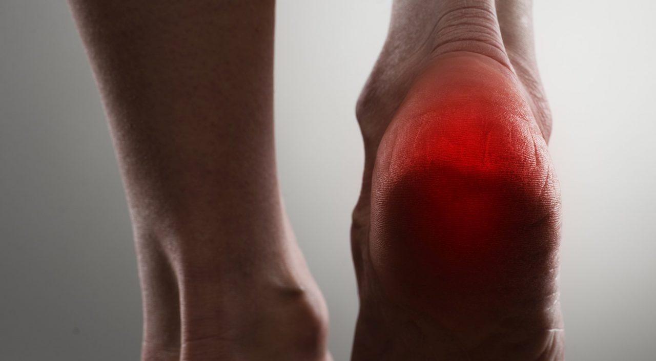 Heel-pain-67817393s-1280x705.jpg